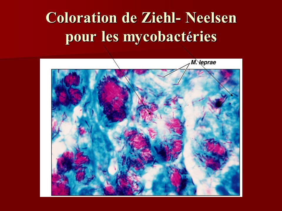 Coloration de Ziehl- Neelsen pour les mycobact é ries