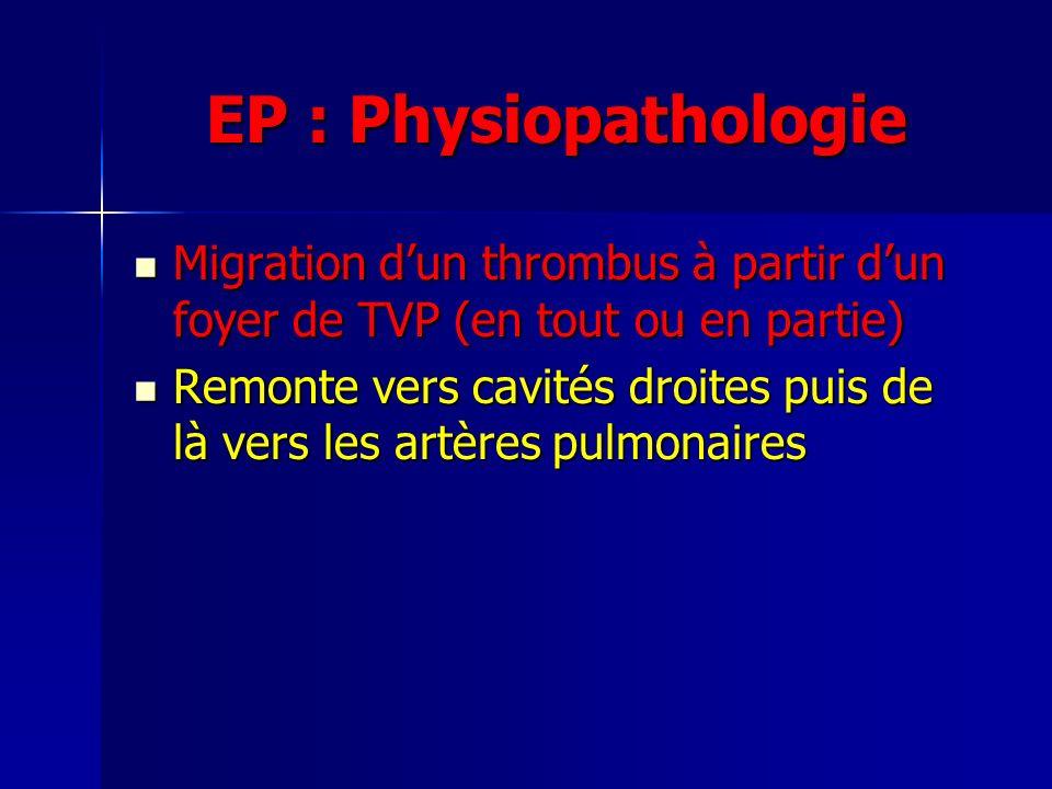 EP : Physiopathologie Migration dun thrombus à partir dun foyer de TVP (en tout ou en partie) Migration dun thrombus à partir dun foyer de TVP (en tout ou en partie) Remonte vers cavités droites puis de là vers les artères pulmonaires Remonte vers cavités droites puis de là vers les artères pulmonaires