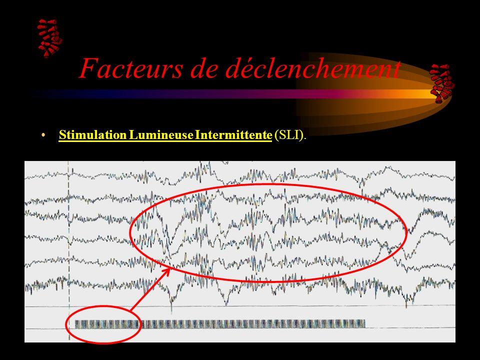 Facteurs de déclenchement Stimulation Lumineuse IntermittenteStimulation Lumineuse Intermittente (SLI).