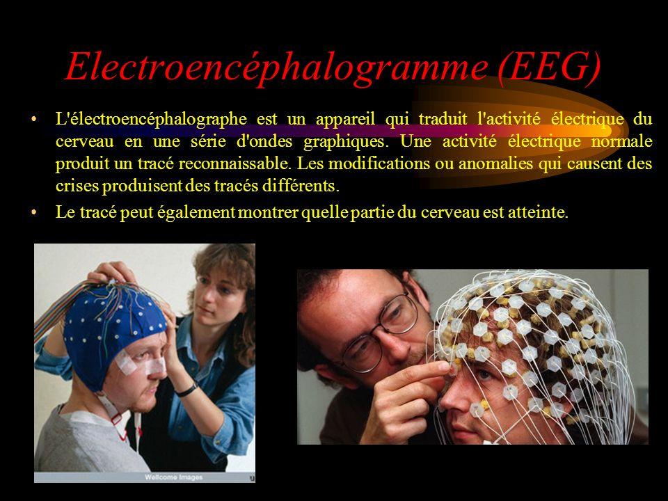 Electroencéphalogramme (EEG) L'électroencéphalographe est un appareil qui traduit l'activité électrique du cerveau en une série d'ondes graphiques. Un