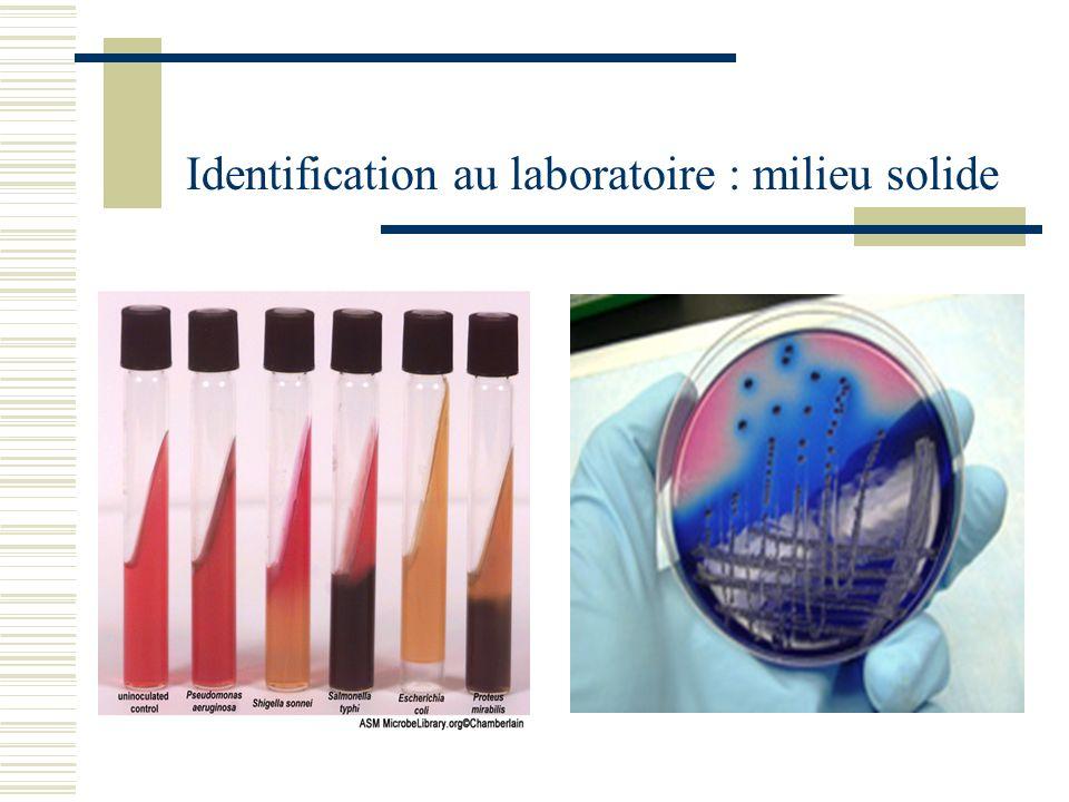 Identification au laboratoire : milieu solide