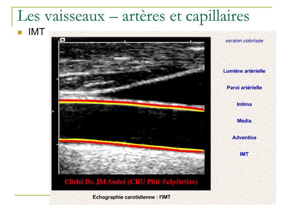 Les vaisseaux – artères et capillaires IMT