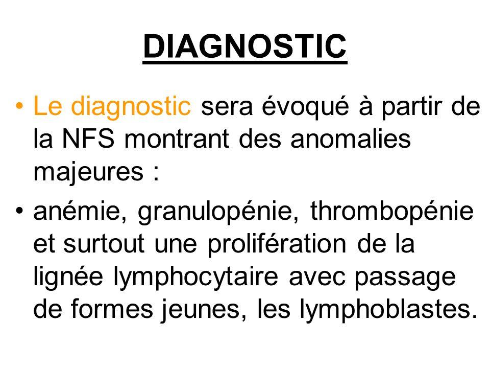 DIAGNOSTIC Le diagnostic sera évoqué à partir de la NFS montrant des anomalies majeures : anémie, granulopénie, thrombopénie et surtout une prolifération de la lignée lymphocytaire avec passage de formes jeunes, les lymphoblastes.
