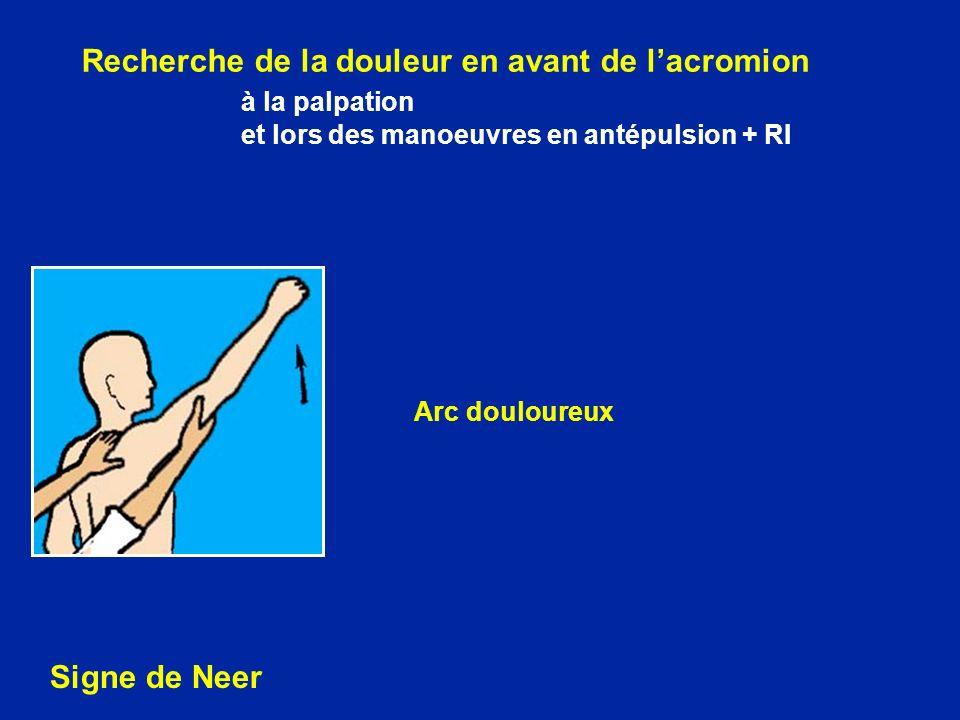 Recherche de la douleur en avant de lacromion à la palpation et lors des manoeuvres en antépulsion + RI Signe de Neer Arc douloureux