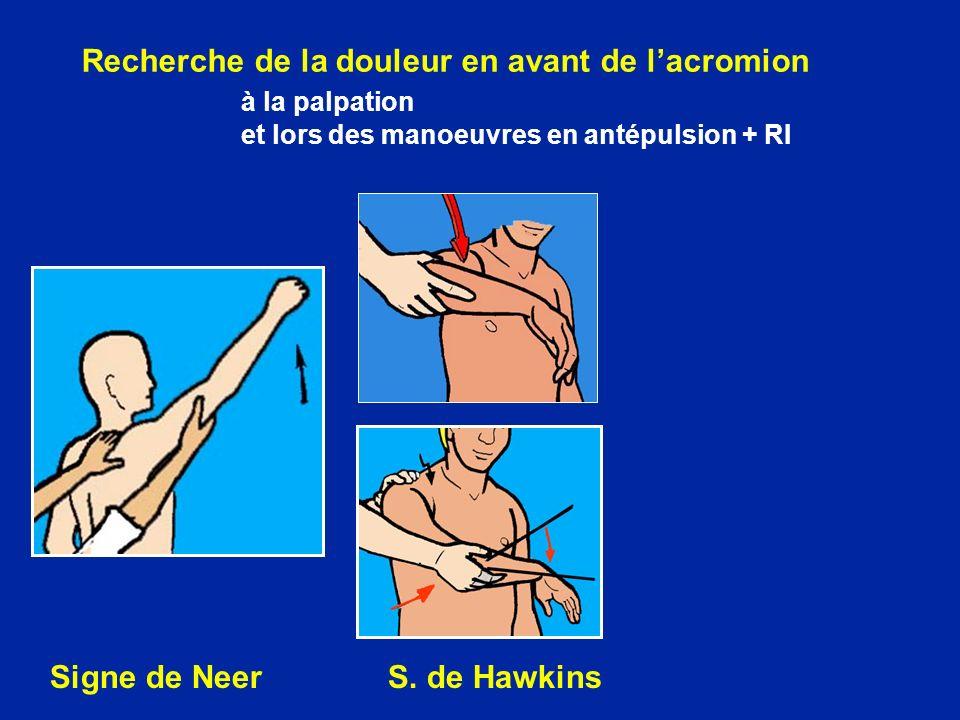 Recherche de la douleur en avant de lacromion à la palpation et lors des manoeuvres en antépulsion + RI Signe de Neer S.