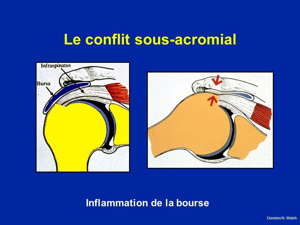Le conflit sous-acromial Inflammation de la bourse Dessins N. Walch