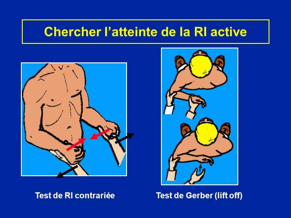 Chercher latteinte de la RI active Test de RI contrariéeTest de Gerber (lift off)