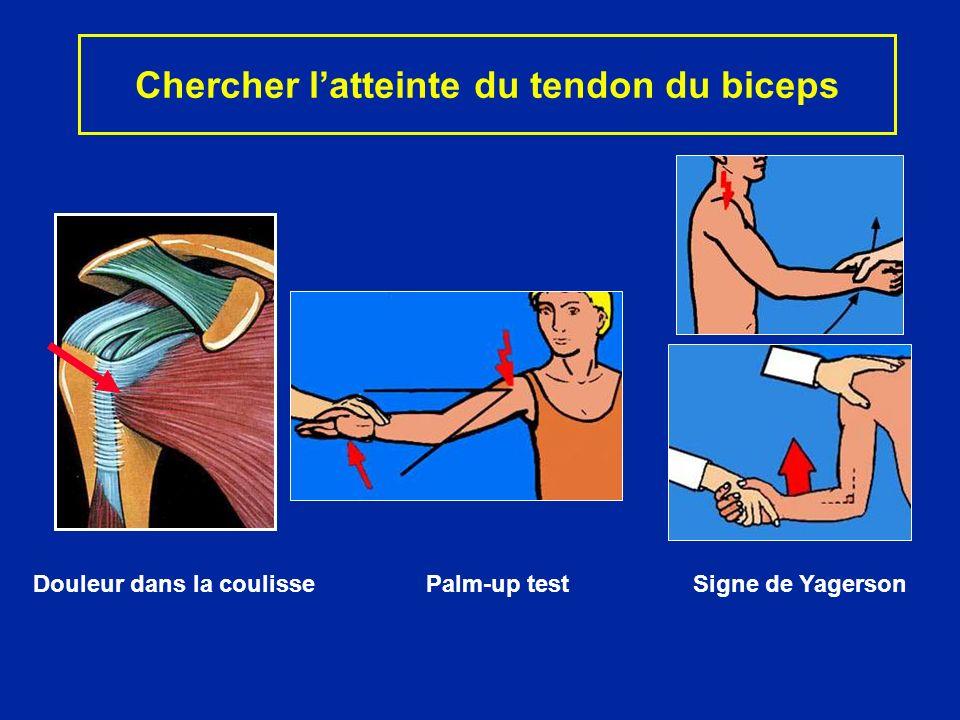 Chercher latteinte du tendon du biceps Douleur dans la coulisse Palm-up test Signe de Yagerson