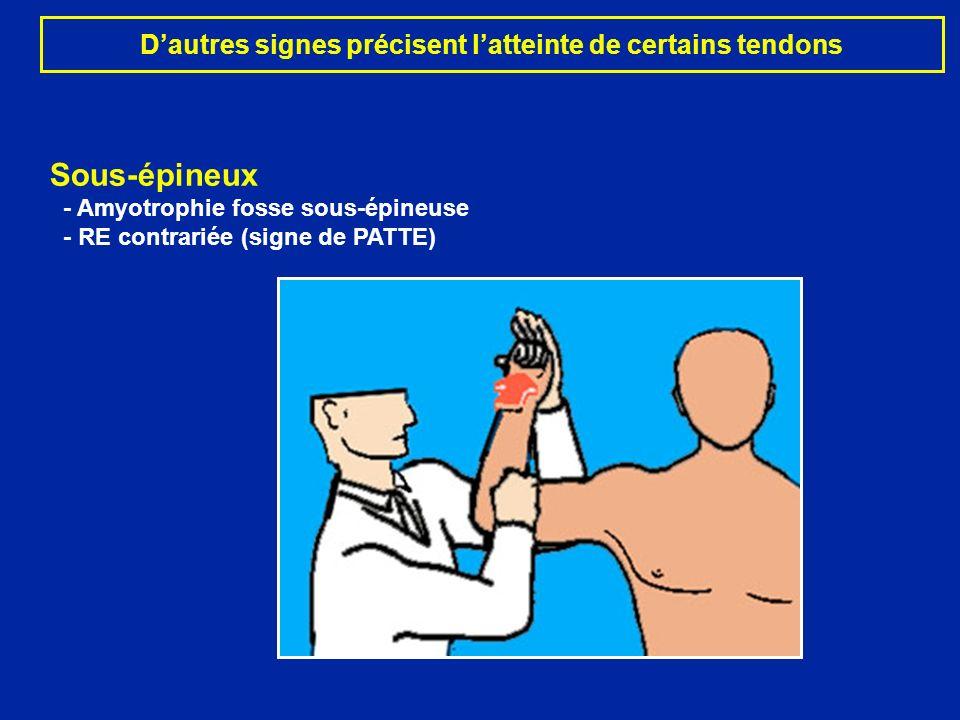 Dautres signes précisent latteinte de certains tendons Sous-épineux - Amyotrophie fosse sous-épineuse - RE contrariée (signe de PATTE)