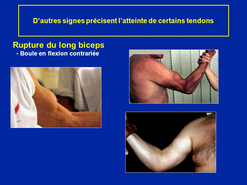Dautres signes précisent latteinte de certains tendons Rupture du long biceps - Boule en flexion contrariée