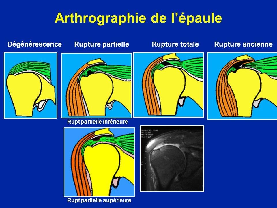 Arthrographie de lépaule Dégénérescence Rupture partielle Rupture totale Rupture ancienne Rupt partielle inférieure Rupt partielle supérieure