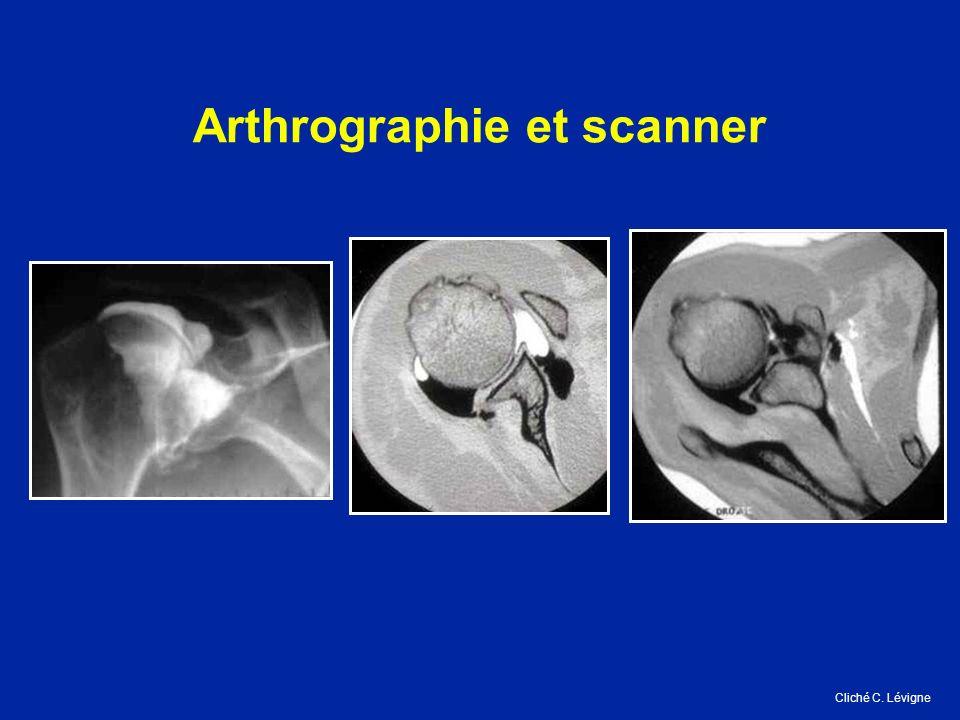 Arthrographie et scanner Cliché C. Lévigne