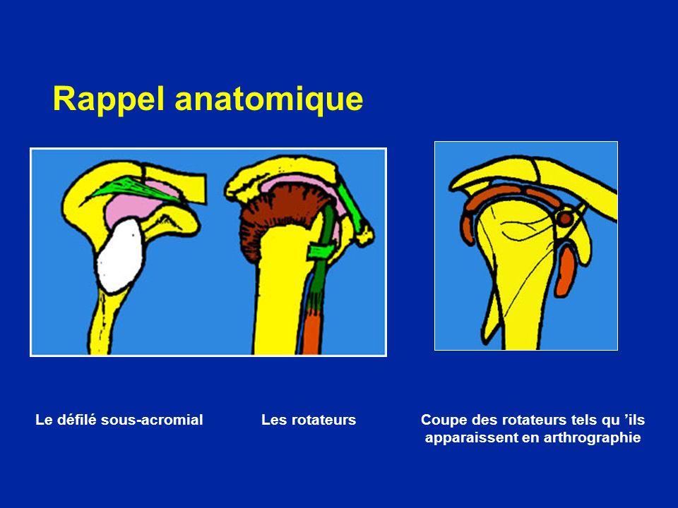 Rappel anatomique Le défilé sous-acromialLes rotateurs Coupe des rotateurs tels qu ils apparaissent en arthrographie
