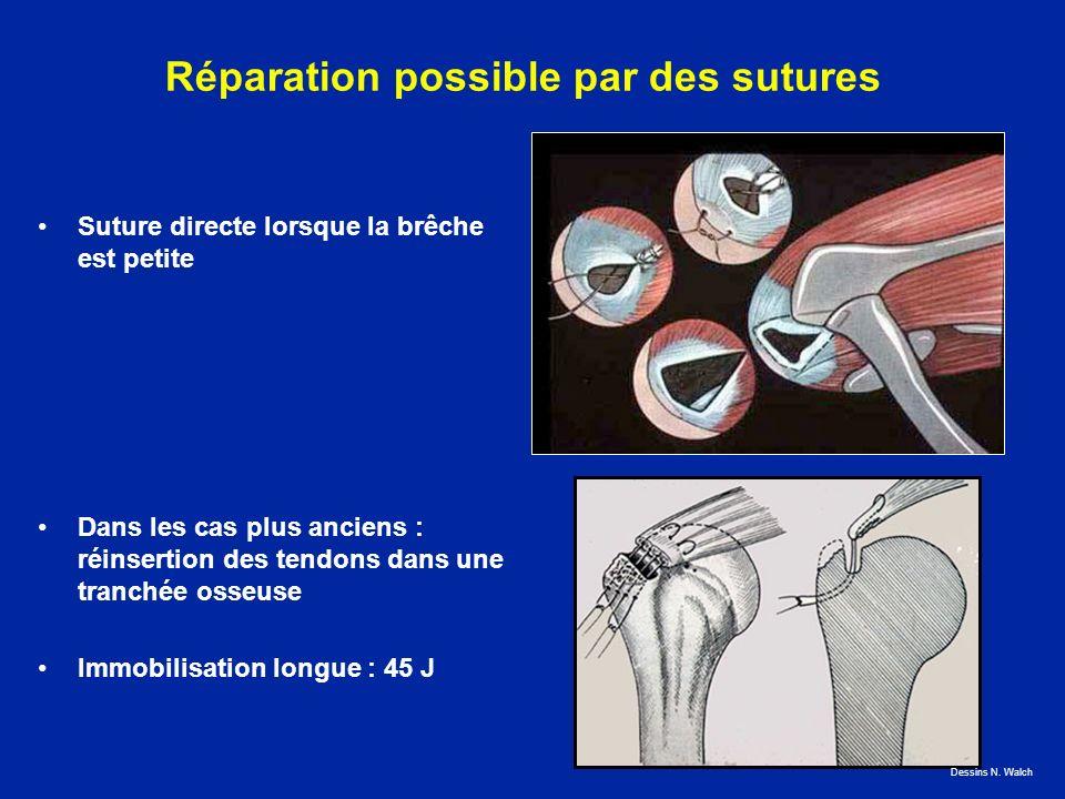 Réparation possible par des sutures Suture directe lorsque la brêche est petite Dans les cas plus anciens : réinsertion des tendons dans une tranchée