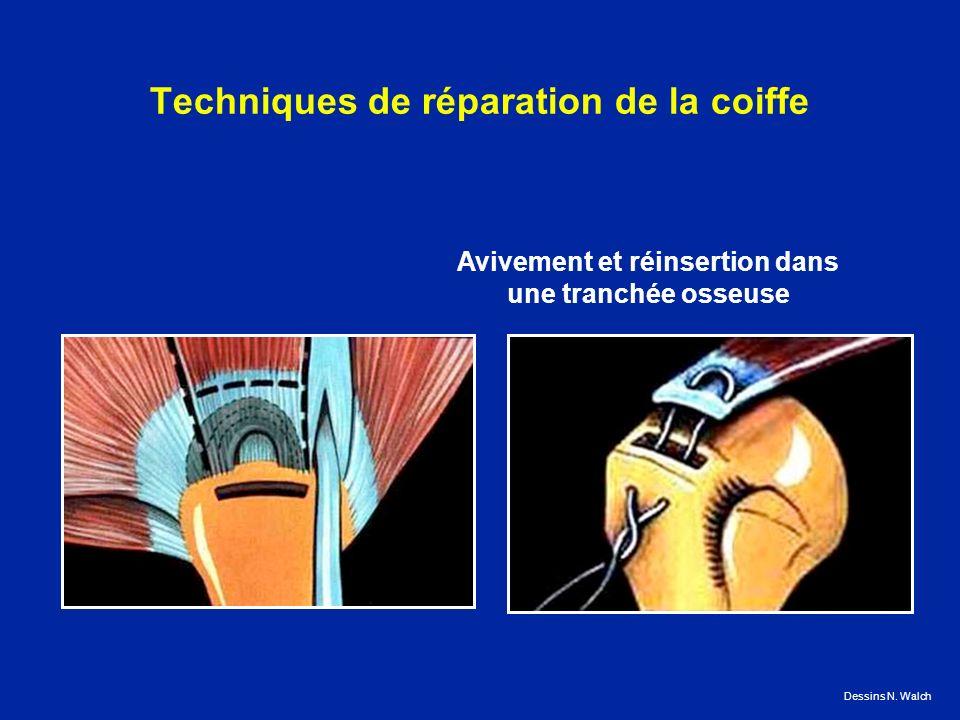 Techniques de réparation de la coiffe Avivement et réinsertion dans une tranchée osseuse Dessins N. Walch