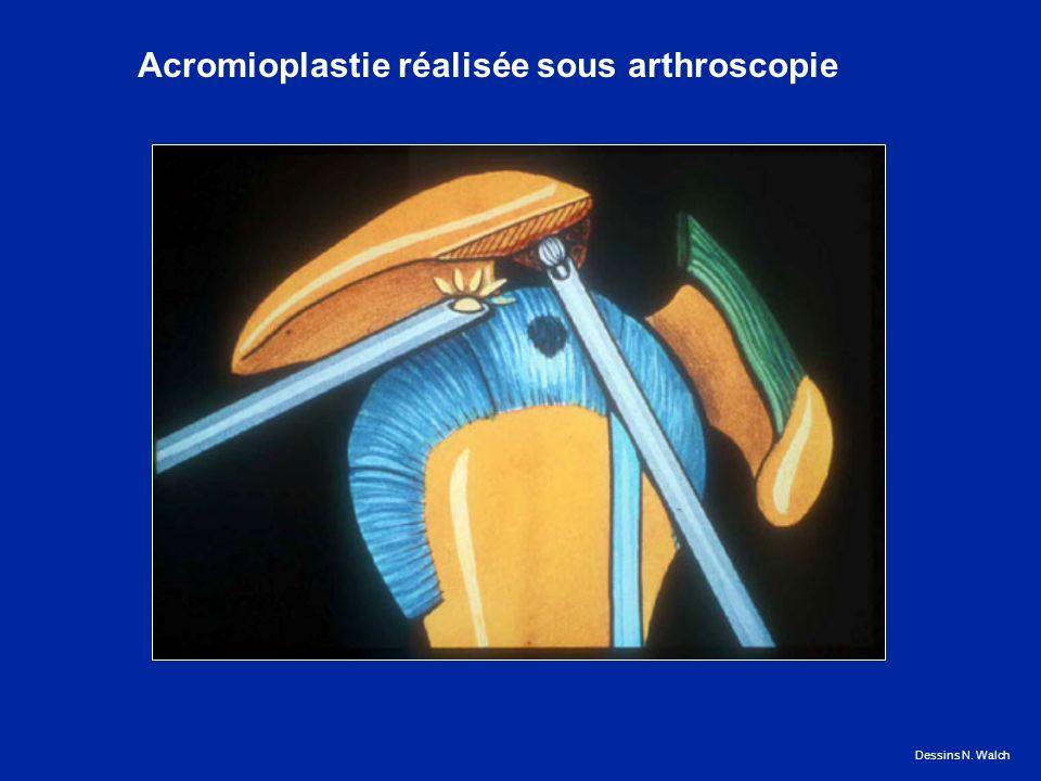 Dessins N. Walch Acromioplastie réalisée sous arthroscopie