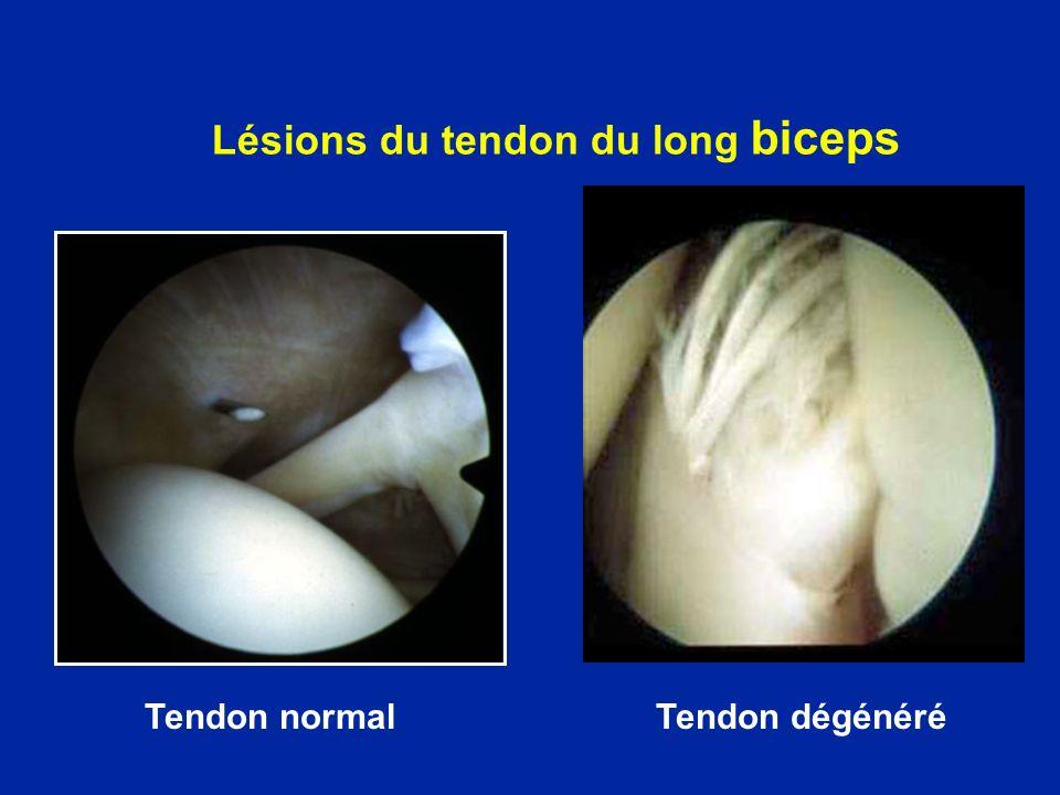 Lésions du tendon du long biceps Tendon normalTendon dégénéré