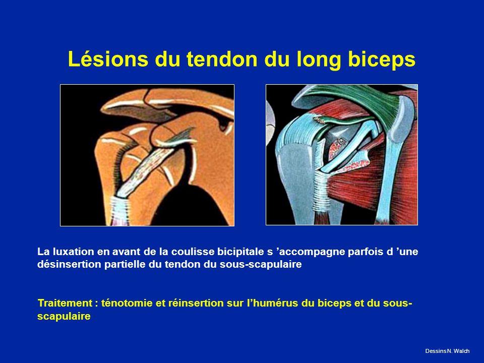 Lésions du tendon du long biceps La luxation en avant de la coulisse bicipitale s accompagne parfois d une désinsertion partielle du tendon du sous-scapulaire Traitement : ténotomie et réinsertion sur lhumérus du biceps et du sous- scapulaire Dessins N.