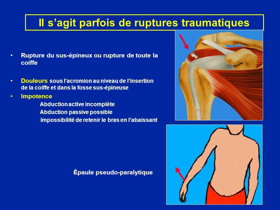 Il sagit parfois de ruptures traumatiques Rupture du sus-épineux ou rupture de toute la coiffe Douleurs sous lacromion au niveau de linsertion de la c