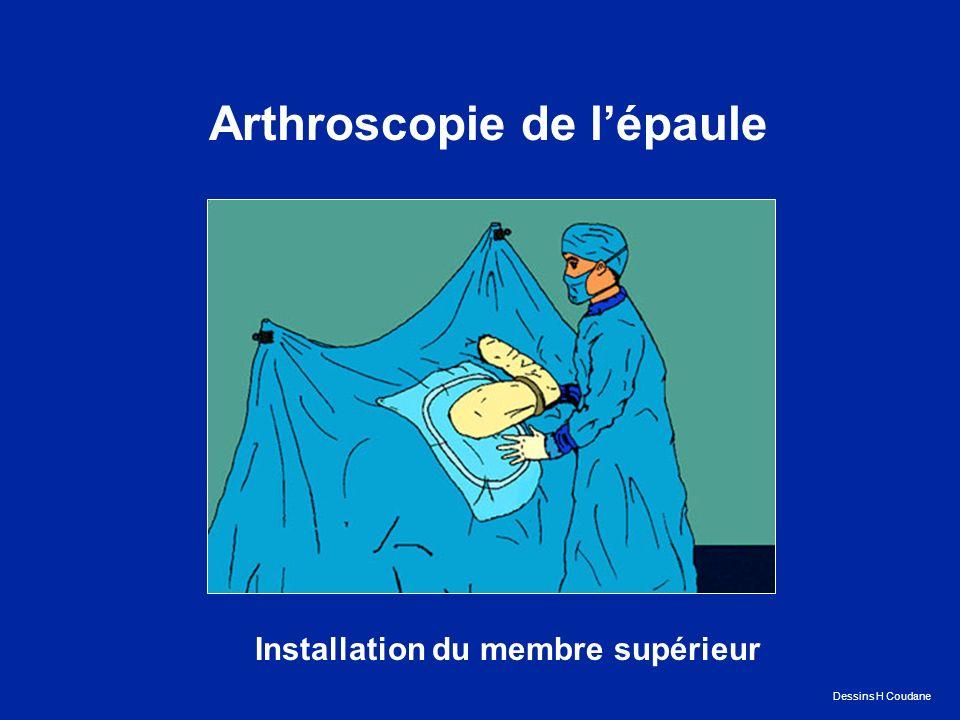 Arthroscopie de lépaule Installation du membre supérieur Dessins H Coudane