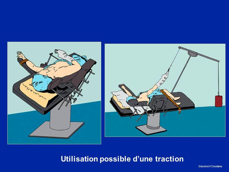 Utilisation possible dune traction Dessins H Coudane