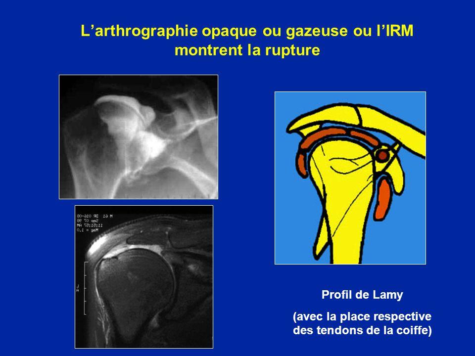 Larthrographie opaque ou gazeuse ou lIRM montrent la rupture Profil de Lamy (avec la place respective des tendons de la coiffe)
