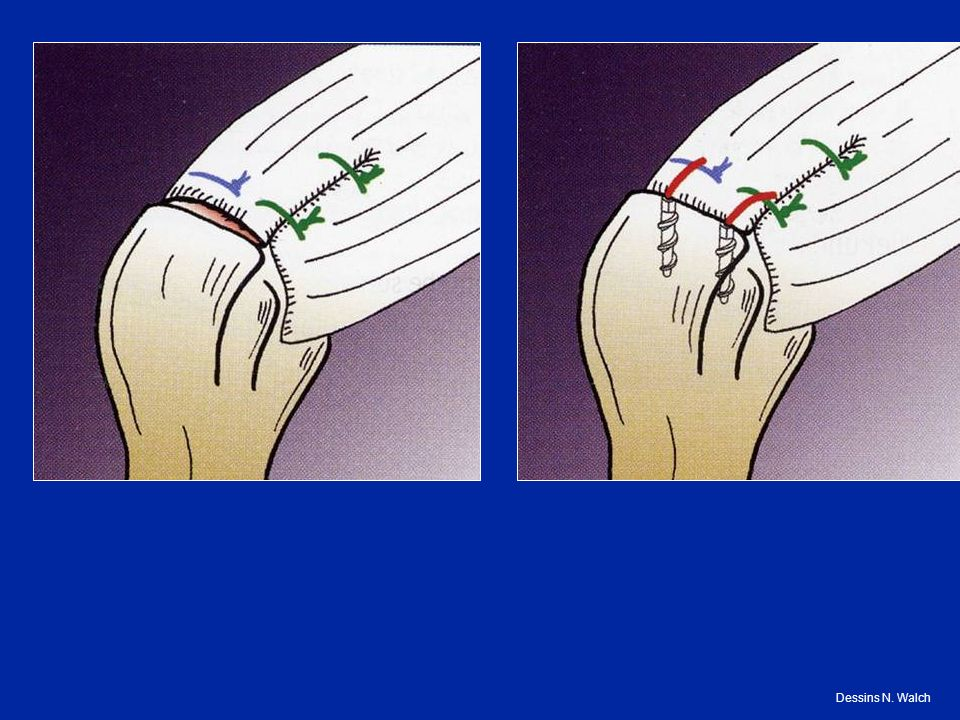 Réparation possible par des sutures Suture directe lorsque la brêche est petite Dans les cas plus anciens : réinsertion des tendons dans une tranchée osseuse Immobilisation longue : 45 J Dessins N.