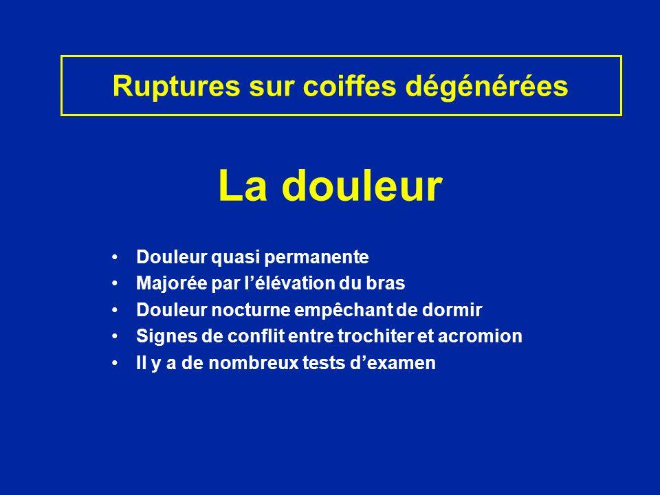 Dautres signes précisent latteinte de certains tendons Sus-épineux - Amyotrophie fosse sus-épineuse - Manoeuvre de JOBE