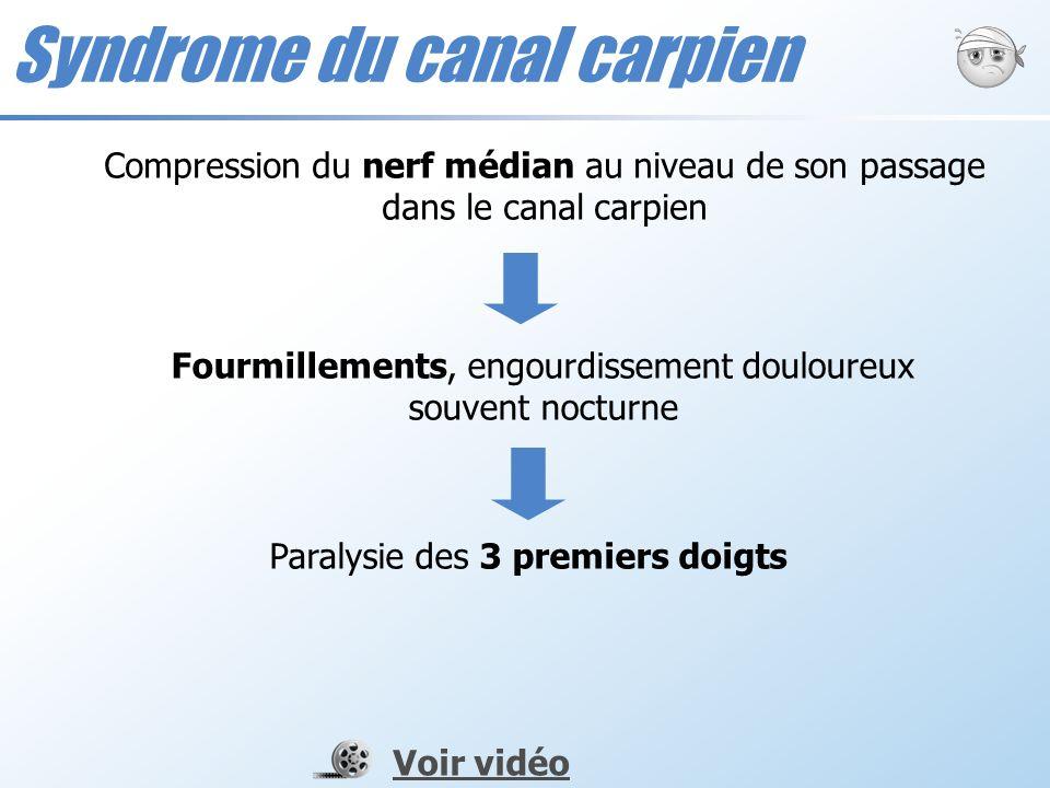 Syndrome du canal carpien Compression du nerf médian au niveau de son passage dans le canal carpien Fourmillements, engourdissement douloureux souvent