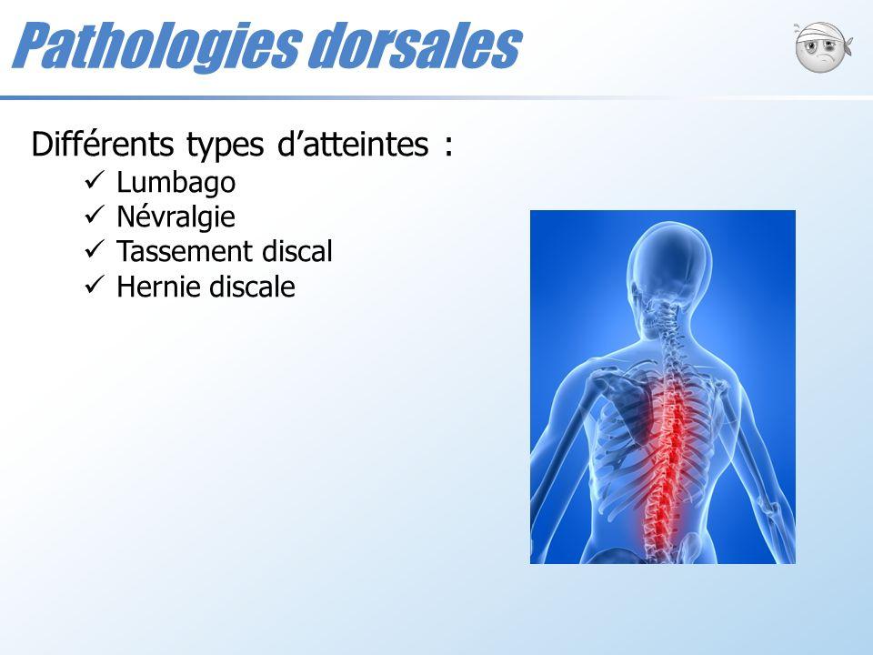 Pathologies dorsales Différents types datteintes : Lumbago Névralgie Tassement discal Hernie discale