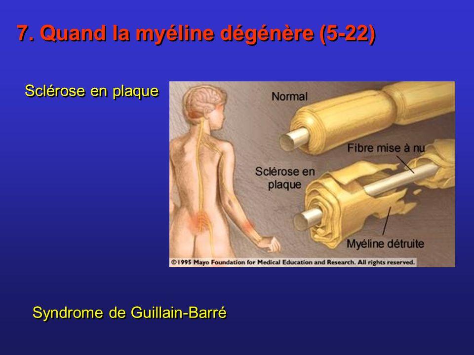 Luigi Galvani (1737 / 1798) Un courant électrique appliqué à un nerf provoque la contraction des muscles d une grenouille morte.