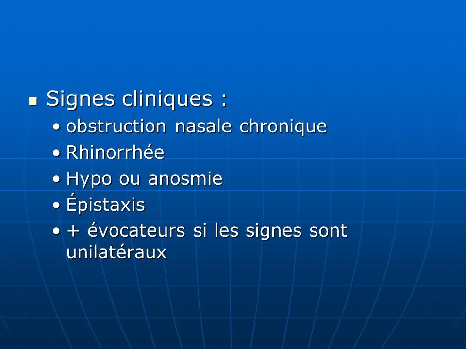 Signes cliniques : Signes cliniques : obstruction nasale chroniqueobstruction nasale chronique RhinorrhéeRhinorrhée Hypo ou anosmieHypo ou anosmie Épi
