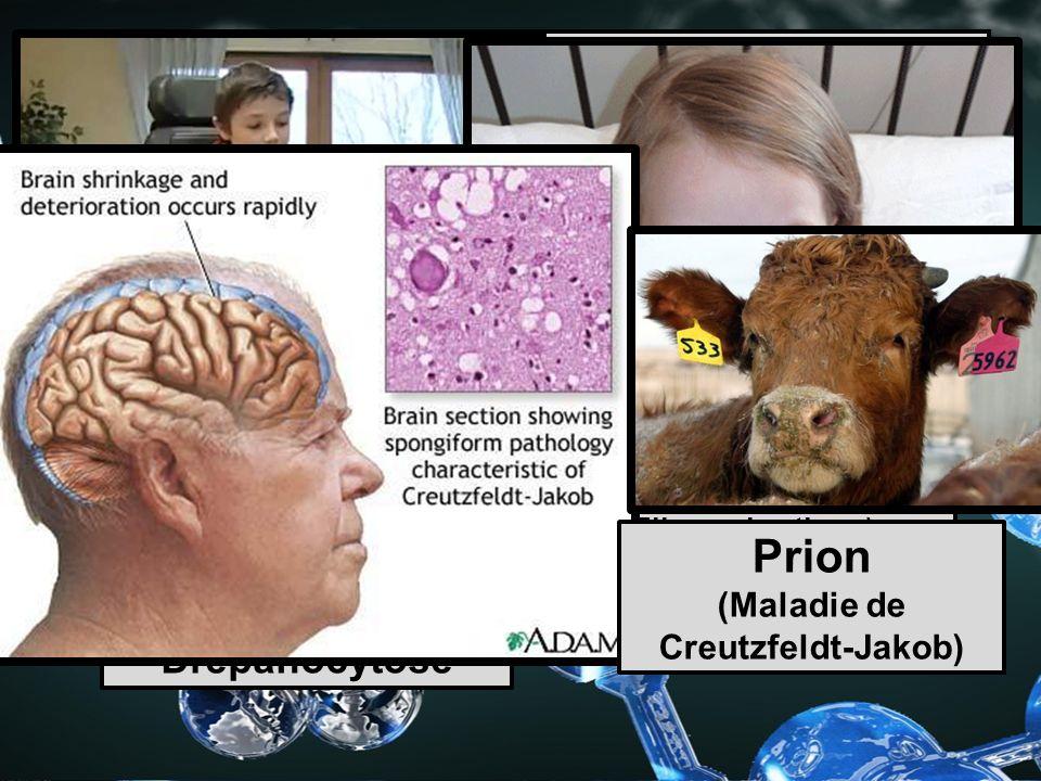 Maladies causées par les protéines Dystrophies musculaires Mucoviscidose (Fibrose kystique) Drépanocytose Prion (Maladie de Creutzfeldt-Jakob)