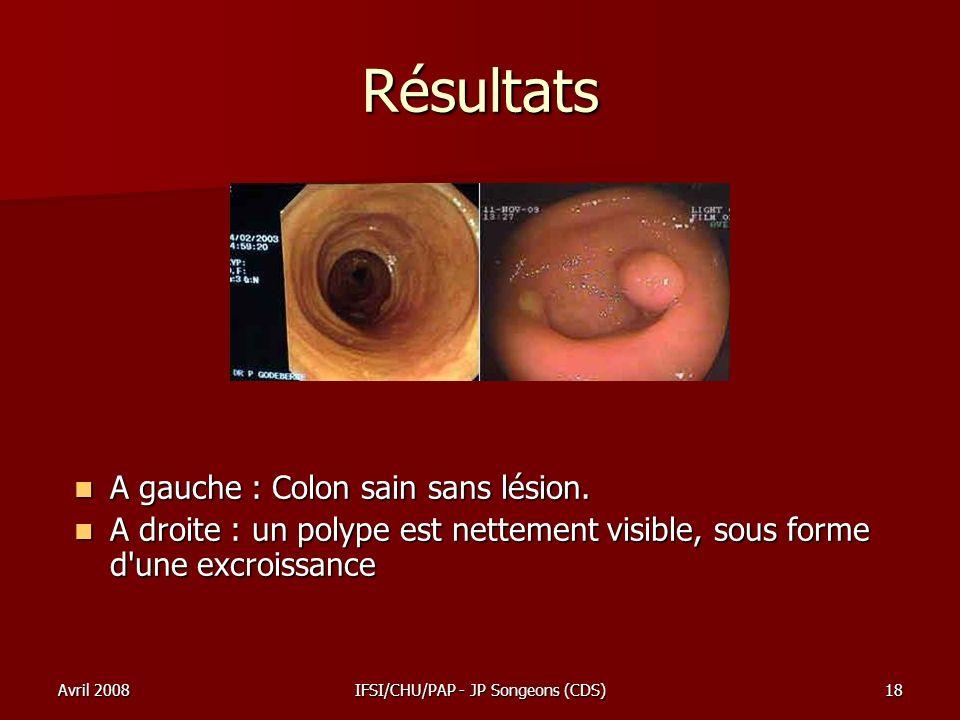 Avril 2008IFSI/CHU/PAP - JP Songeons (CDS)18 Résultats A gauche : Colon sain sans lésion. A gauche : Colon sain sans lésion. A droite : un polype est