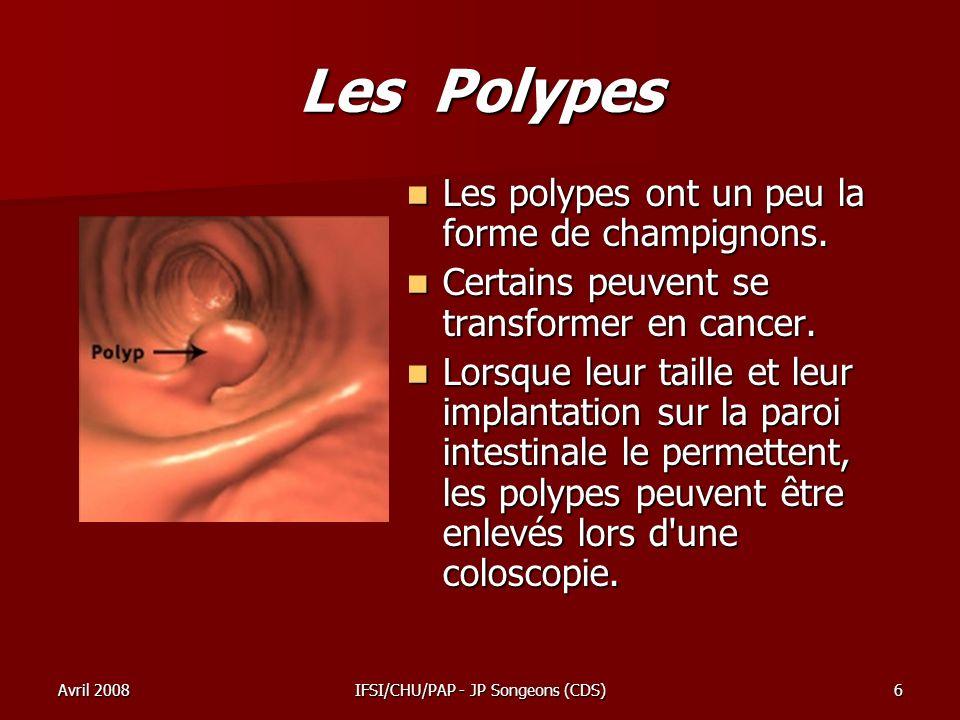 Avril 2008IFSI/CHU/PAP - JP Songeons (CDS)7 Les Polypes –On utilise le plus souvent le bistouri électrique, qui permet de sectionner ou de coaguler les polypes.