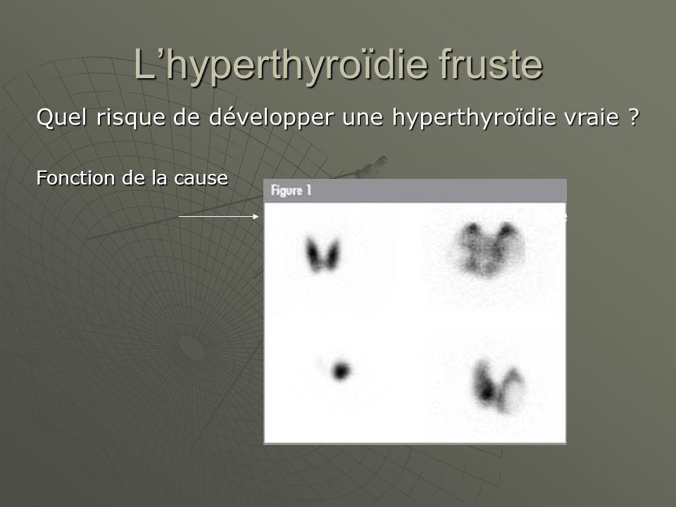 Lhyperthyroïdie fruste Quel risque de développer une hyperthyroïdie vraie ? Fonction de la cause Bilan scintigraphique indispensable