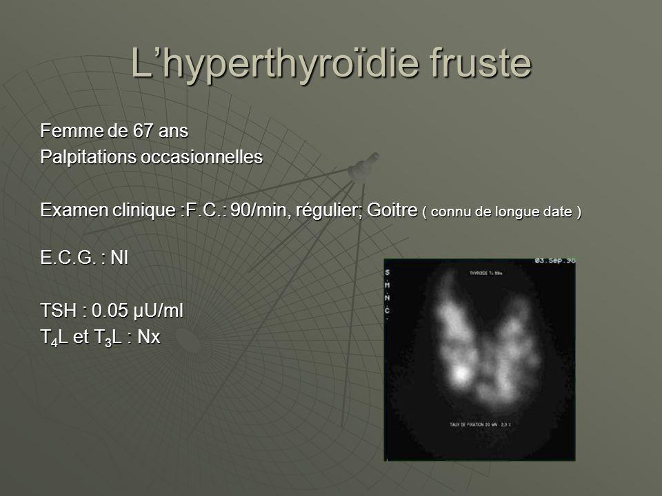 Lhyperthyroïdie fruste Femme de 67 ans Palpitations occasionnelles Examen clinique :F.C.: 90/min, régulier; Goitre ( connu de longue date ) E.C.G. : N