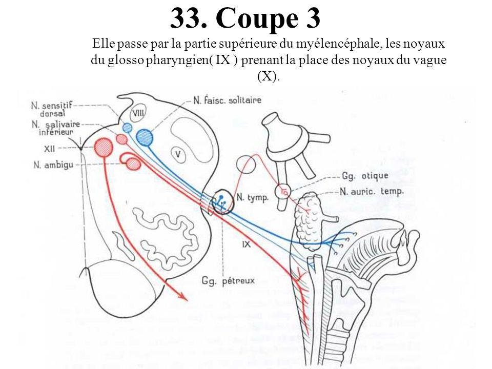 33.Coupe 3 Elle passe par la partie supérieure du myélencéphale, les noyaux du glosso pharyngien( IX ) prenant la place des noyaux du vague (X).