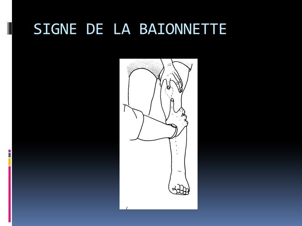 SIGNE DE LA BAIONNETTE
