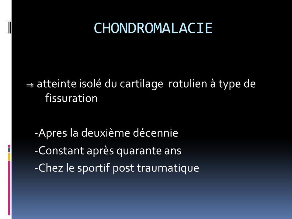 CHONDROMALACIE atteinte isolé du cartilage rotulien à type de fissuration -Apres la deuxième décennie -Constant après quarante ans -Chez le sportif po