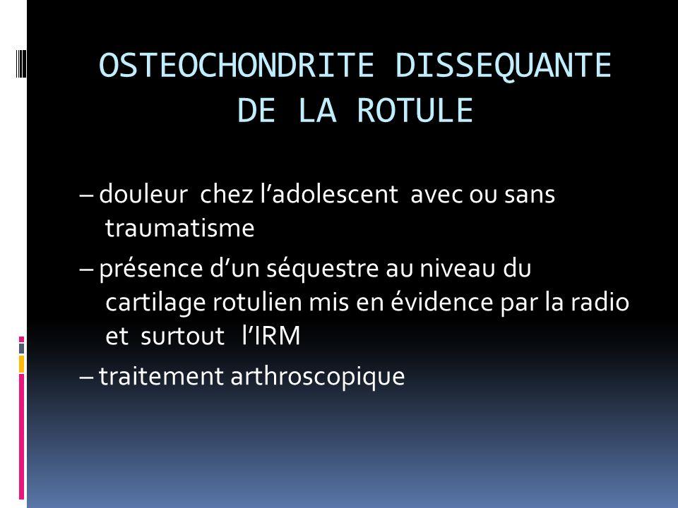 OSTEOCHONDRITE DISSEQUANTE DE LA ROTULE – douleur chez ladolescent avec ou sans traumatisme – présence dun séquestre au niveau du cartilage rotulien m