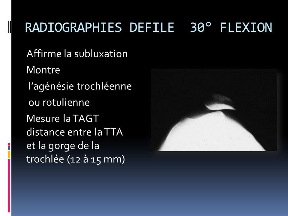 RADIOGRAPHIES DEFILE 30° FLEXION Affirme la subluxation Montre lagénésie trochléenne ou rotulienne Mesure la TAGT distance entre la TTA et la gorge de