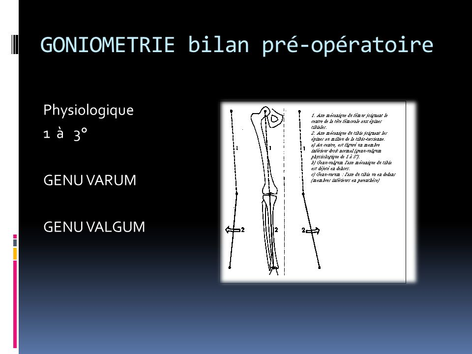 GONIOMETRIE bilan pré-opératoire Physiologique 1 à 3° GENU VARUM GENU VALGUM