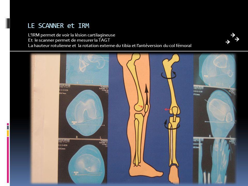 LE SCANNER et IRM LIRM permet de voir la lésion cartilagineuse Et le scanner permet de mesurer la TAGT La hauteur rotulienne et la rotation externe du