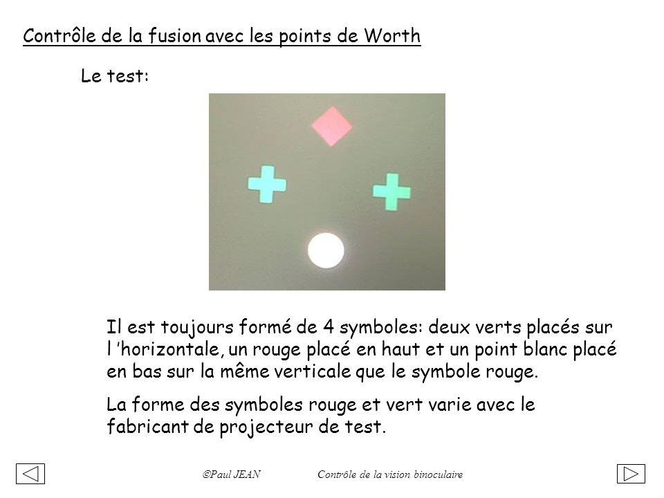 Paul JEAN Contrôle de la vision binoculaire Contrôle de la fusion avec les points de Worth Le test: Il est toujours formé de 4 symboles: deux verts pl