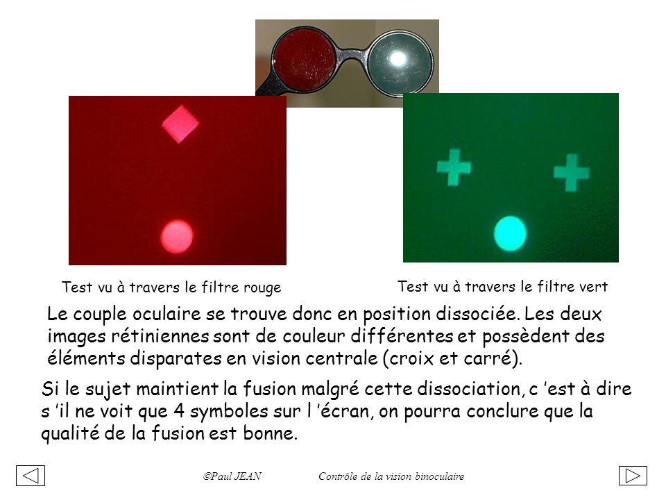 Paul JEAN Contrôle de la vision binoculaire Test vu à travers le filtre rouge Test vu à travers le filtre vert Le couple oculaire se trouve donc en po