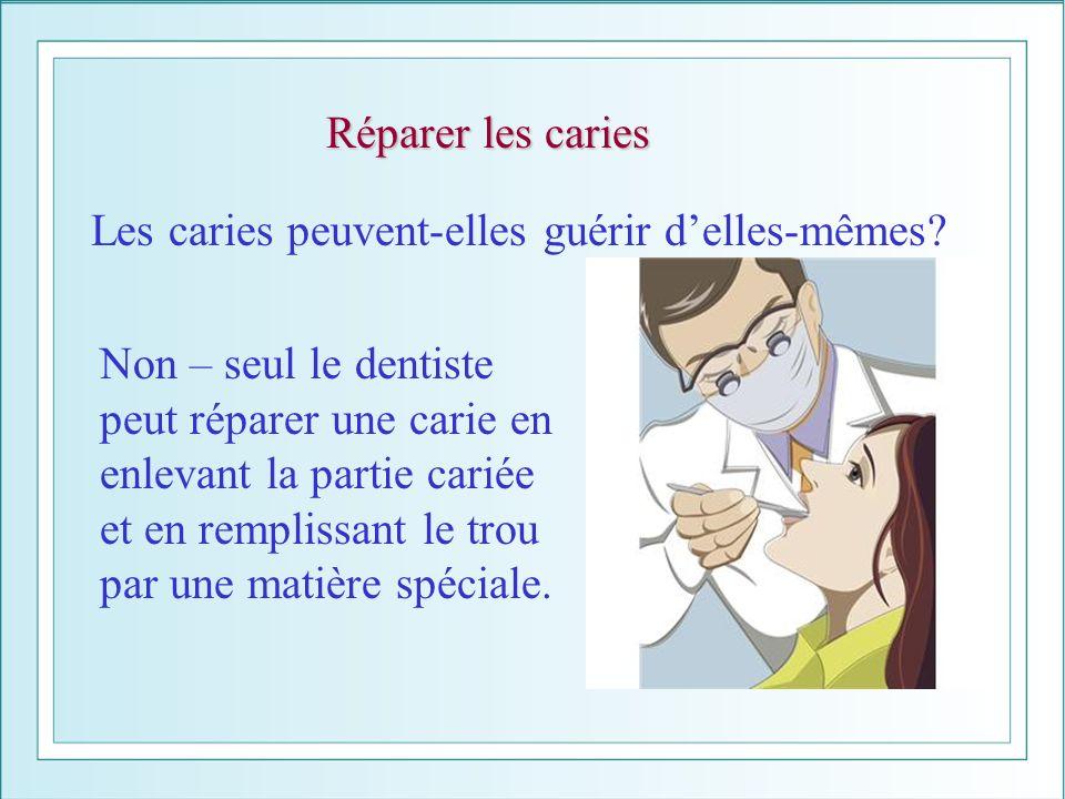 Réparer les caries Les caries peuvent-elles guérir delles-mêmes? Non – seul le dentiste peut réparer une carie en enlevant la partie cariée et en remp