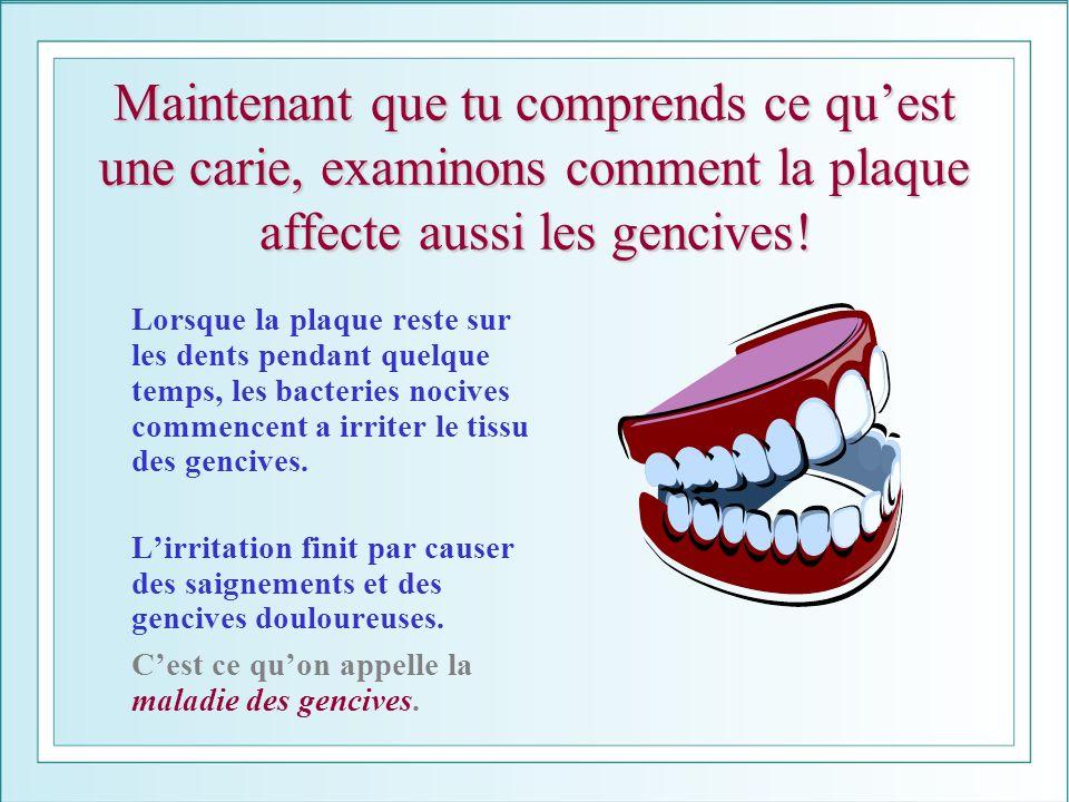 Maintenant que tu comprends ce quest une carie, examinons comment la plaque affecte aussi les gencives! Lorsque la plaque reste sur les dents pendant