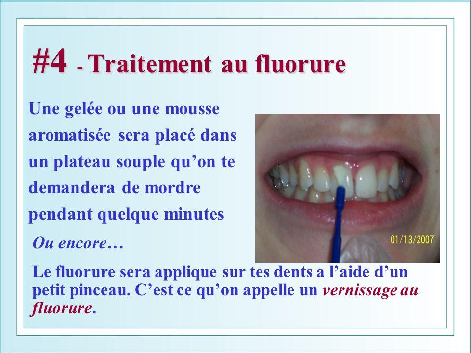 #4 - Traitement au fluorure Ou encore… Le fluorure sera applique sur tes dents a laide dun petit pinceau. Cest ce quon appelle un vernissage au fluoru