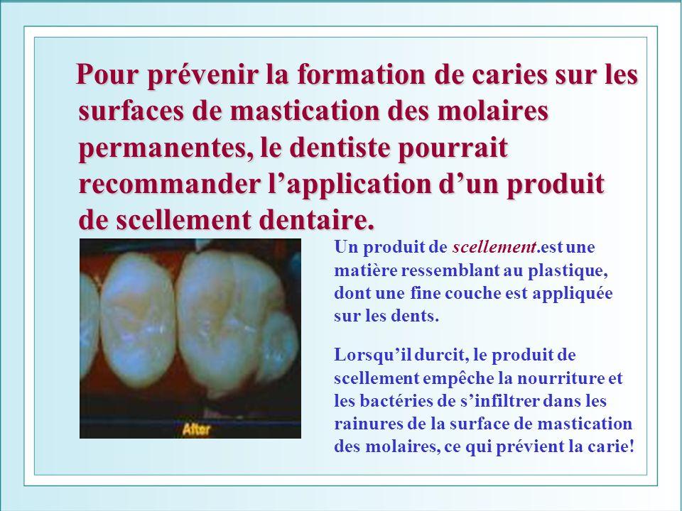 Pour prévenir la formation de caries sur les surfaces de mastication des molaires permanentes, le dentiste pourrait recommander lapplication dun produ
